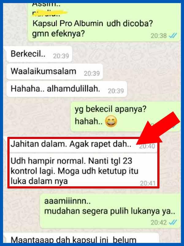 Review Pro Albumin Asli Dan Palsu Serta Bahayanya